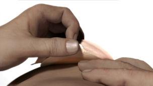 Überprüfen Sie Ihre Technik zum Entfernen der Stomaversorgung