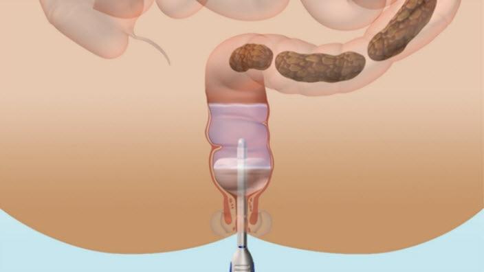 Lernen Sie mehr über die Darmirrigation